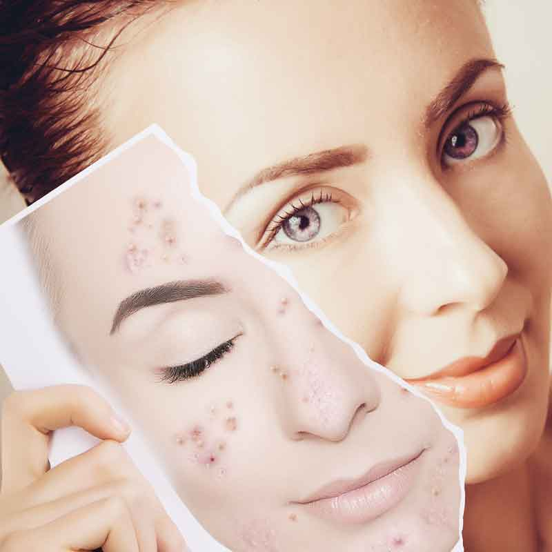 acne scar treatment southend on sea essex uk body aesthetics how does it work