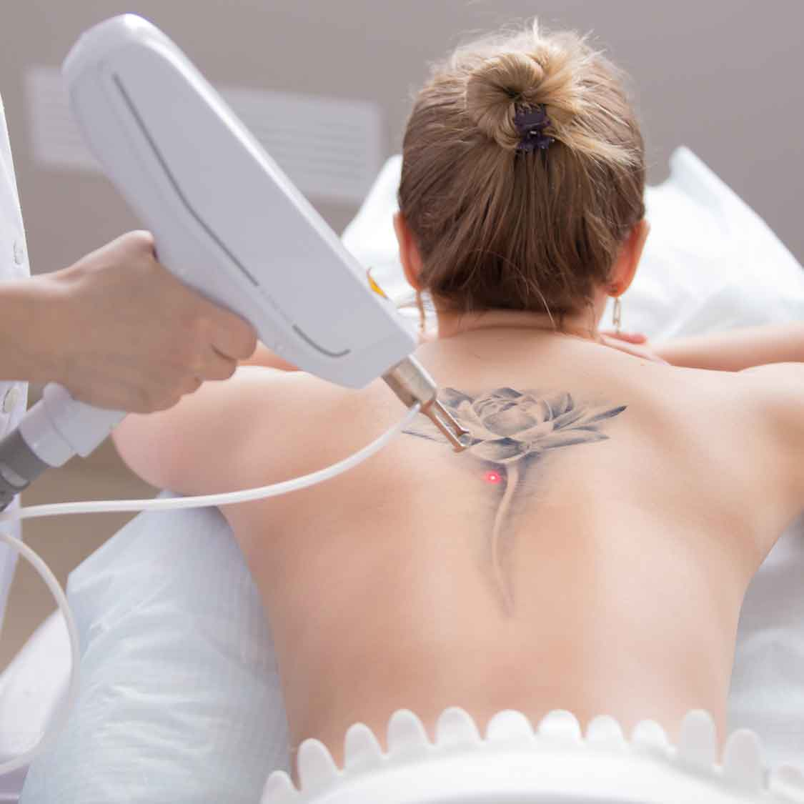 TATTOO REMOVAL LASER TREATMENT SOUTHEND ON SEA ESSEX BODY AESTHETICS 3