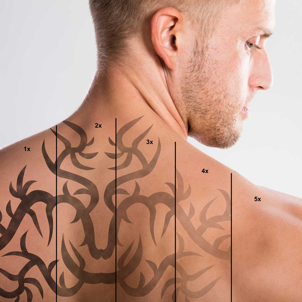 laser treatment essex southend on sea body aesthetics tattoo removal
