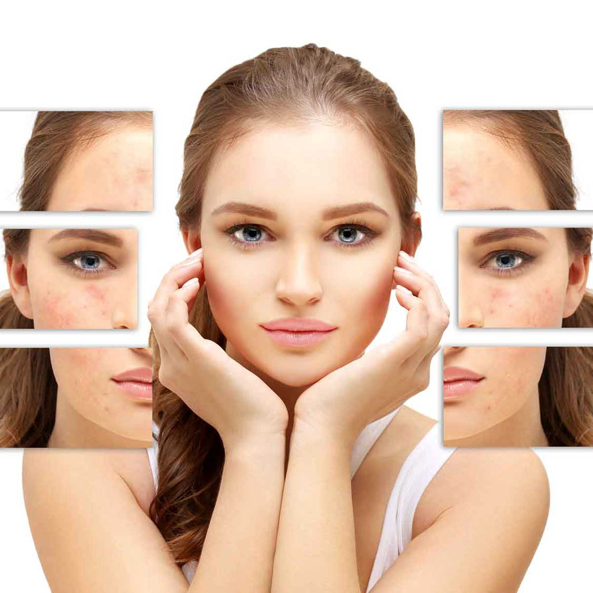mesotherapy essex southend on sea body aesthetics