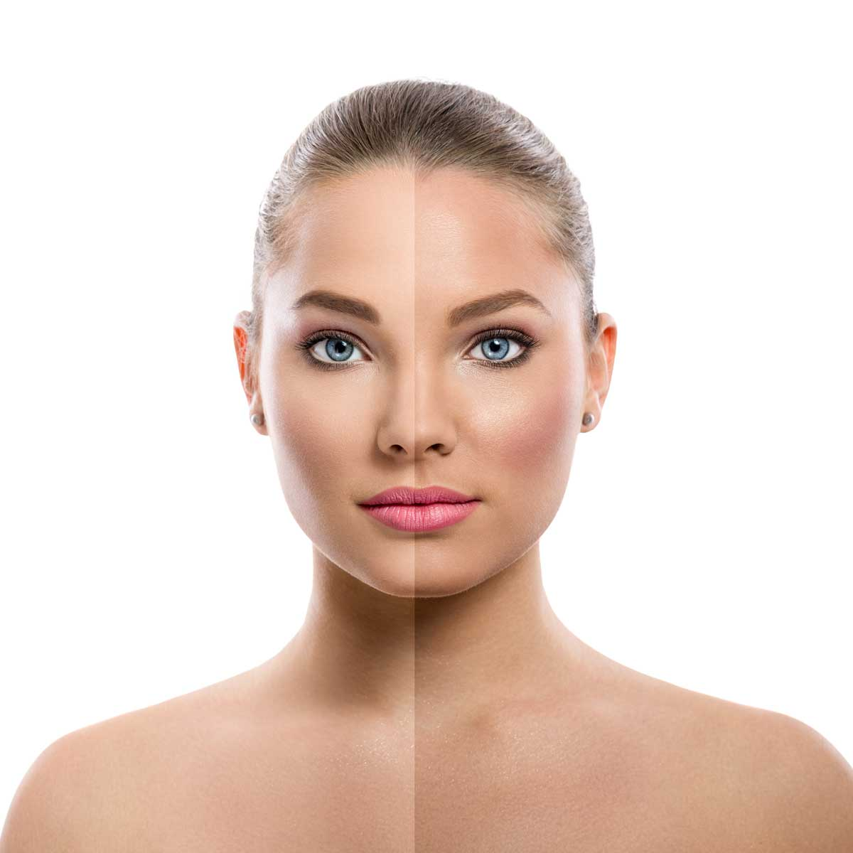 Face Treatments essex southend on sea body aesthetics chemical peel