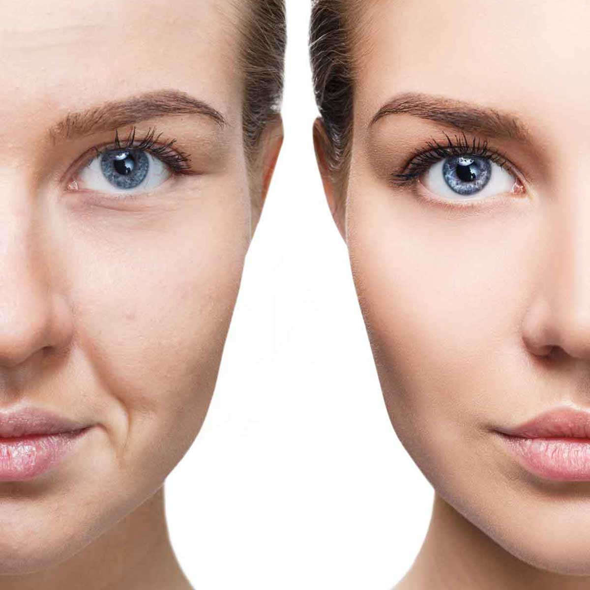 Face Treatments essex southend on sea body aesthetics microneedling
