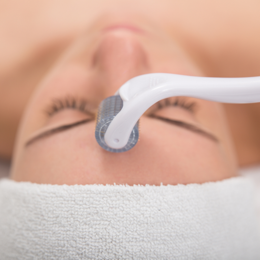 dermaplaning essex southend on sea body aesthetics forehead