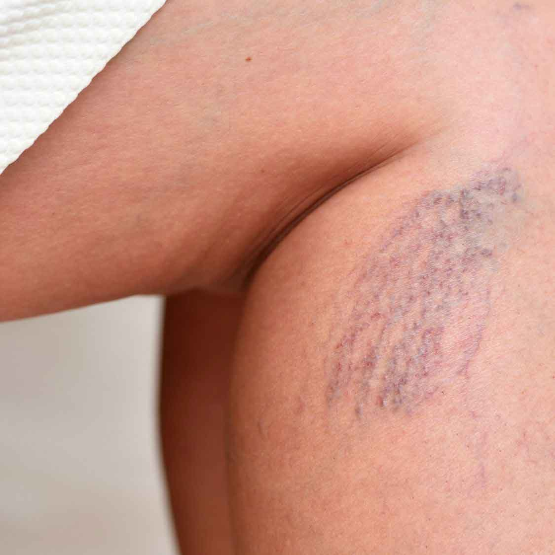laser hair removal essex southend on sea close up